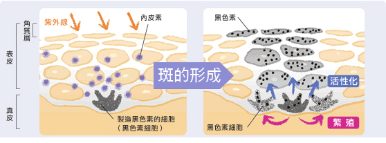 一般分为表皮斑与真皮斑